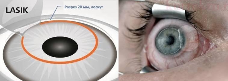 Ласик (lasik) лазерная коррекция зрения - описание операции, последствия