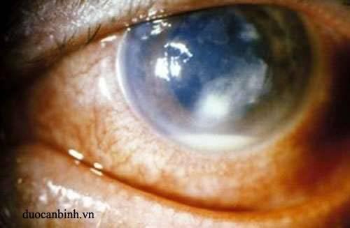 Что такое кератопатия роговицы