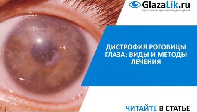 Тонкая роговица глаза: норма и патология, методы лечения и коррекции