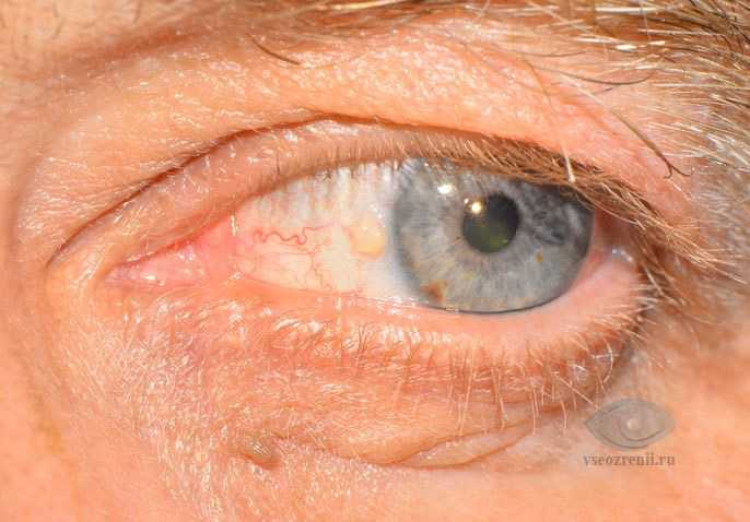 Причины красного пятна в глазу