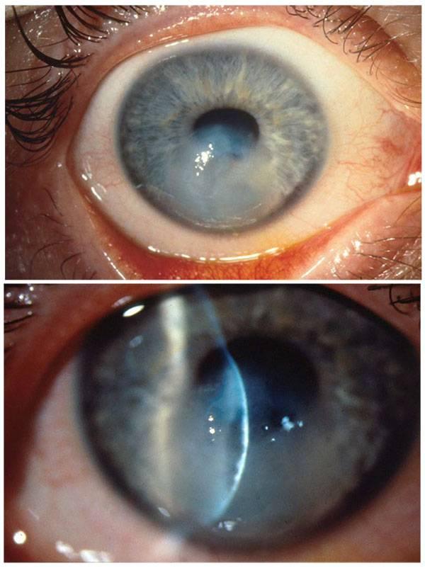 Кросслинкинг роговицы глаза: описание метода, показания и противопоказания, восстановление и ограничения после операции по удалению патологии