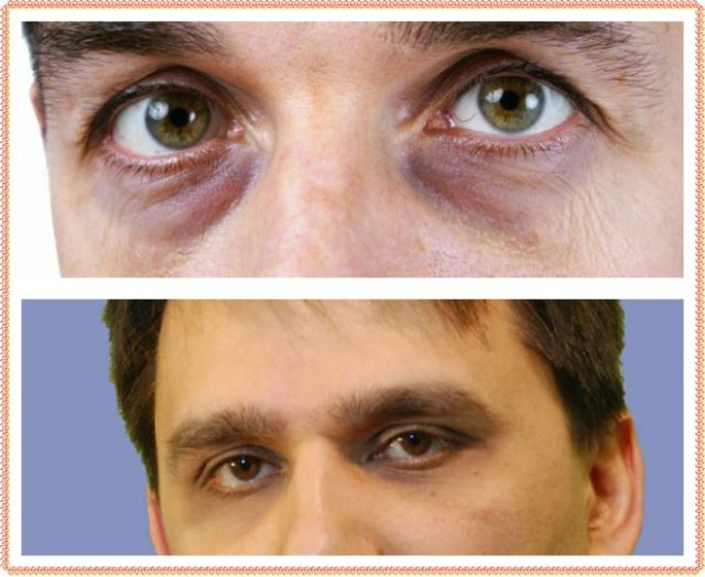 Мешки под глазами, причины и лечение