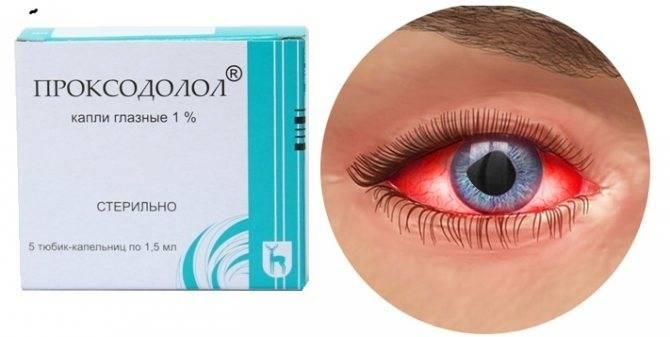 Эффективность глазных капель проксодолол