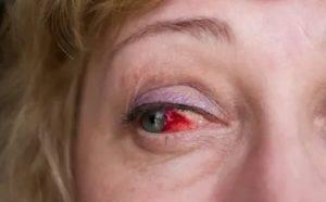 Ушиб глаза: лечение, симптомы и первая помощь
