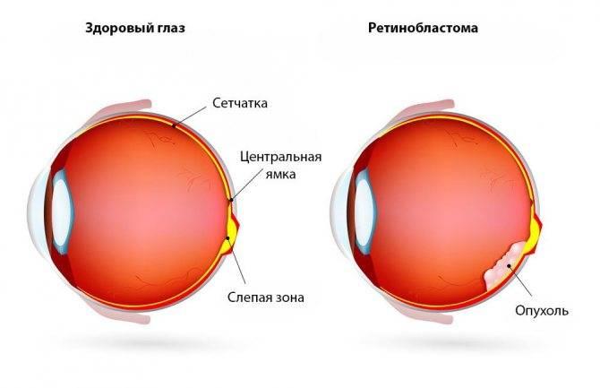 Как выявить первые признаки ретинобластомы у детей?