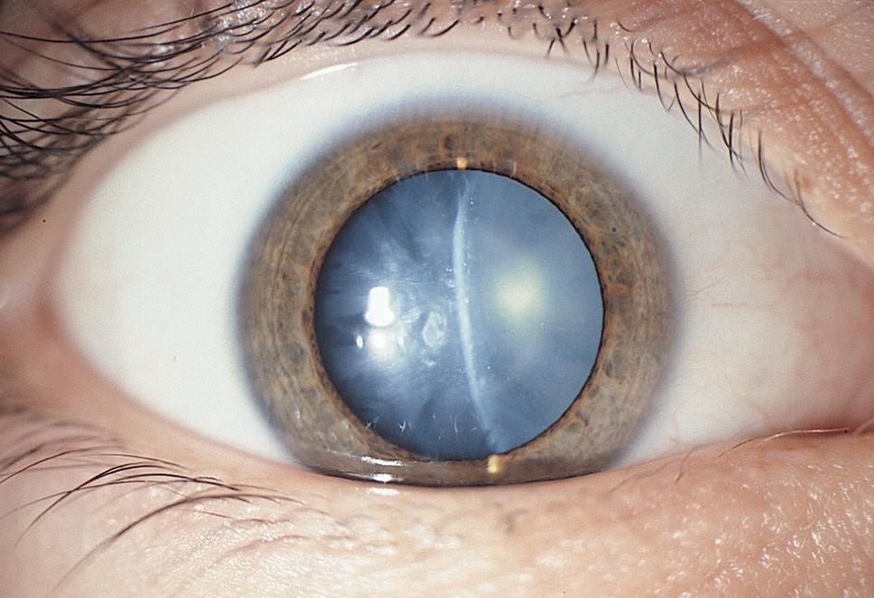 После удаления катаракты видно края линзы - катарактынет