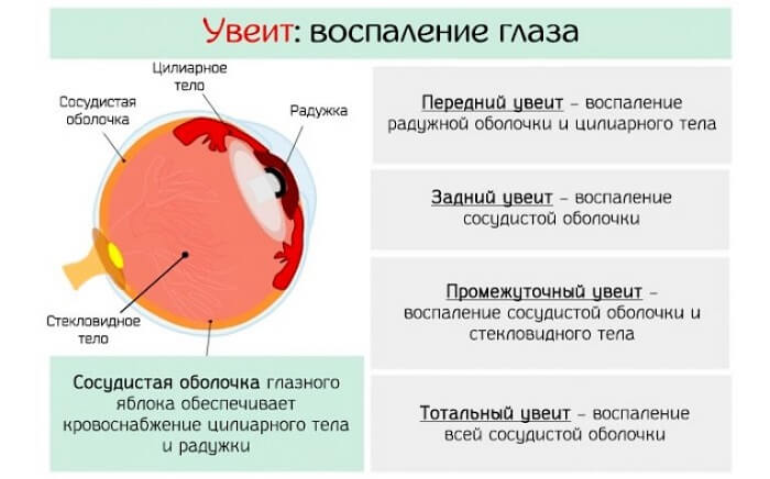 Боль в глазах и голове температура