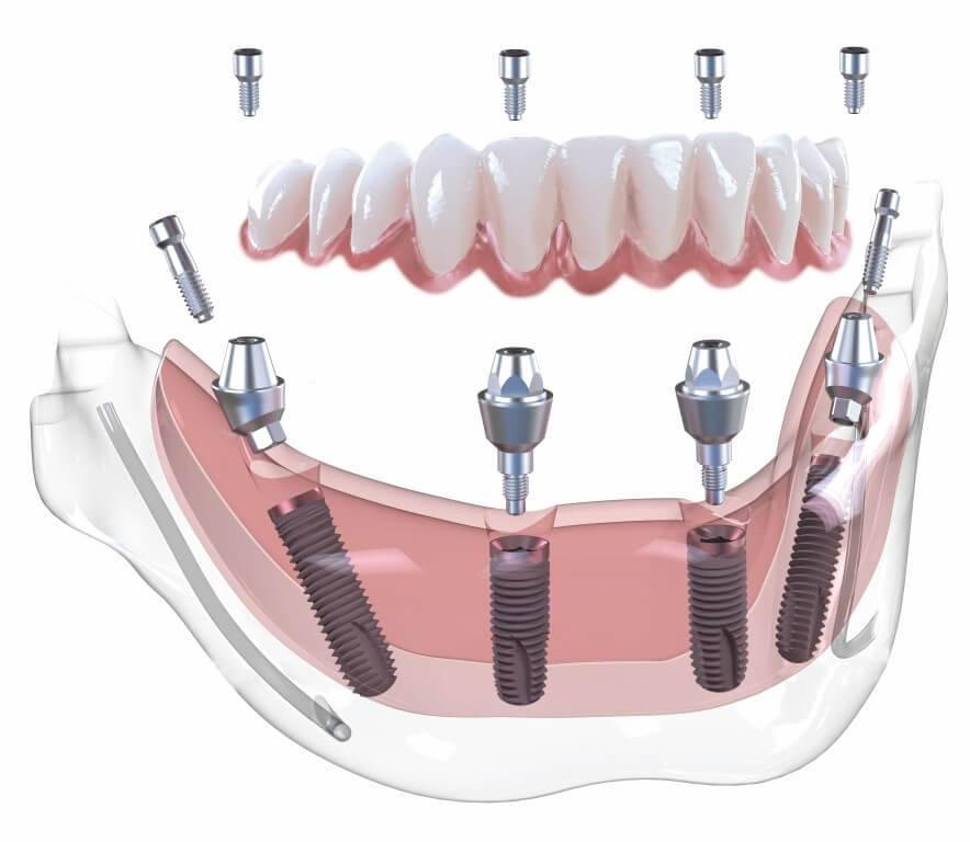 """Концепция """"все на шести"""" и """"все на четырех"""" с использованием системы имплантатов osstem (1779) - имплантология - новости и статьи по стоматологии - профессиональный стоматологический портал (сайт) «клуб стоматологов»"""