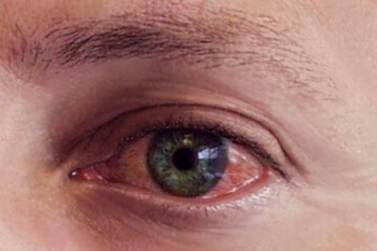 Почему глаза красные и слезятся: причины, когда веки краснеют по утрам, что делать, если покраснели, из-за чего покраснение
