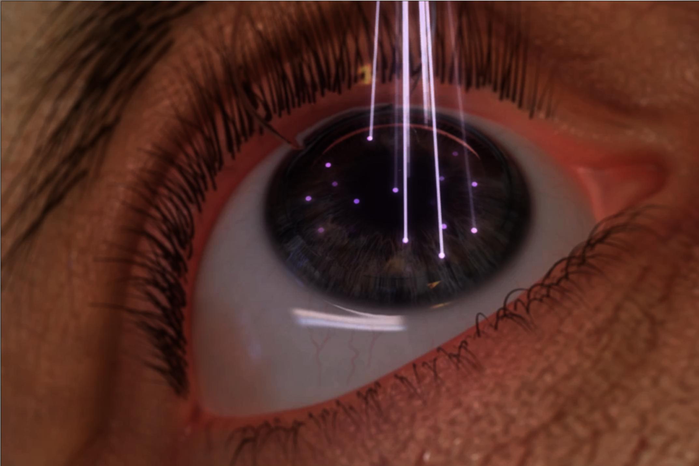 """Осложнения после лазерной коррекции зрения - """"здоровое око"""""""