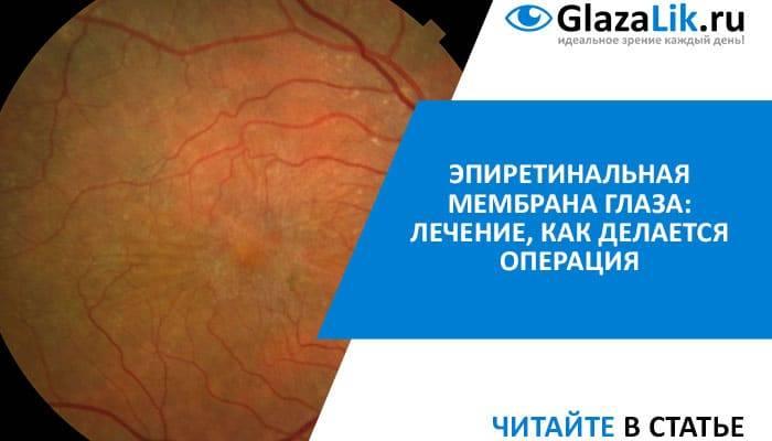 Эпиретинальная мембрана лечение | ocularhelp