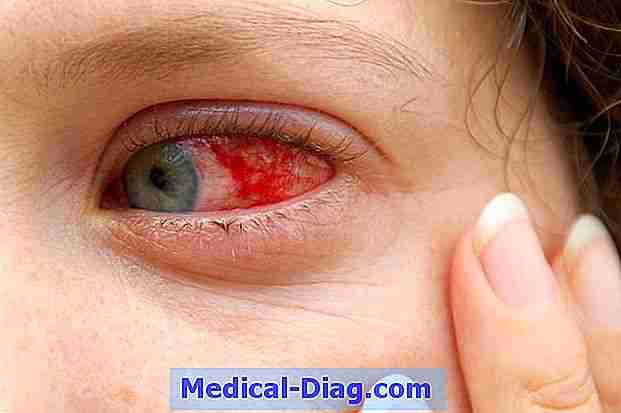 Вирусы и бактерии: почему от них режет и слезится глаз? как не запустить воспалительный процесс?