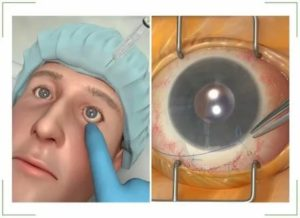 Энуклеация глазного яблока