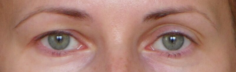 Впавшие глаза