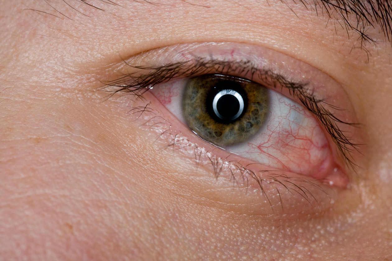 Снимаем синдром усталых глаз