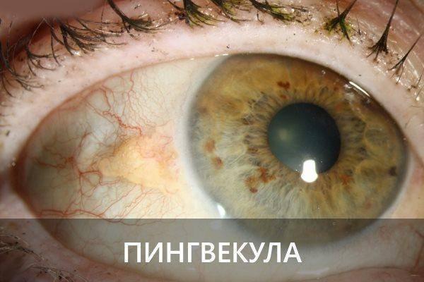 Пингвекула глаза - причины и лечение у взрослых, капли, причины возникновения и методы лечения пингвекулы глаза   медицинский портал spacehealth
