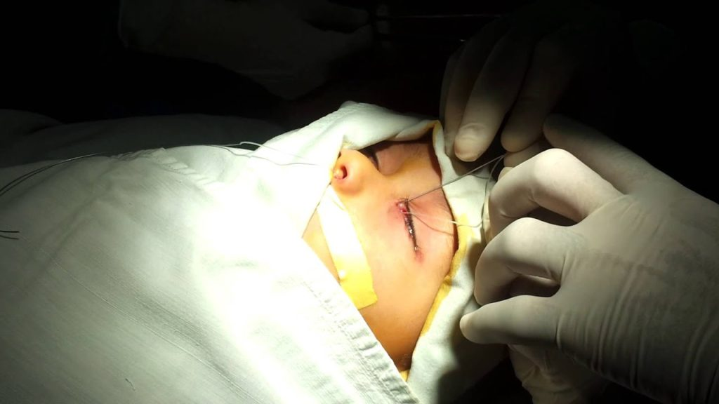 Зондирование глаз: показания к назначению бужирования слезного канала, риски процедуры, побочные эффекты