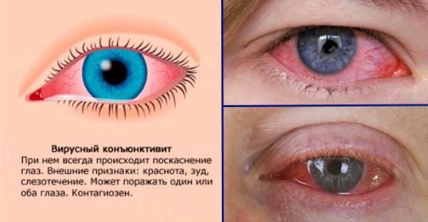 Вирусный конъюнктивит: симптомы и лечение глаз у взрослых, как передается заболевание и заразен ли для окружающих, профилактика, антибиотики другие препараты