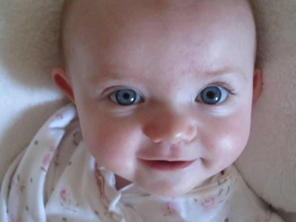 Разные зрачки по размеру у ребенка - причины, почему один больше другого у грудничка, большие у младенца, у новорожденного
