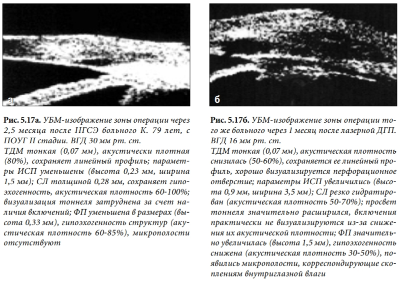 Лазерная коагуляция сетчатки — отзывы. негативные, нейтральные и положительные отзывы