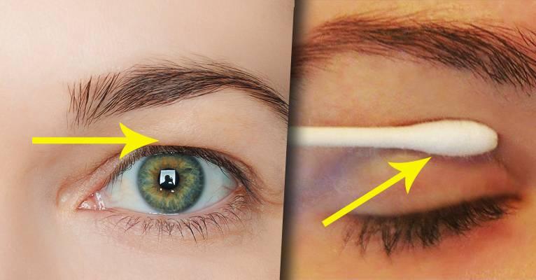 Дряблая кожа под глазами что делать, как избавиться в домашних условиях