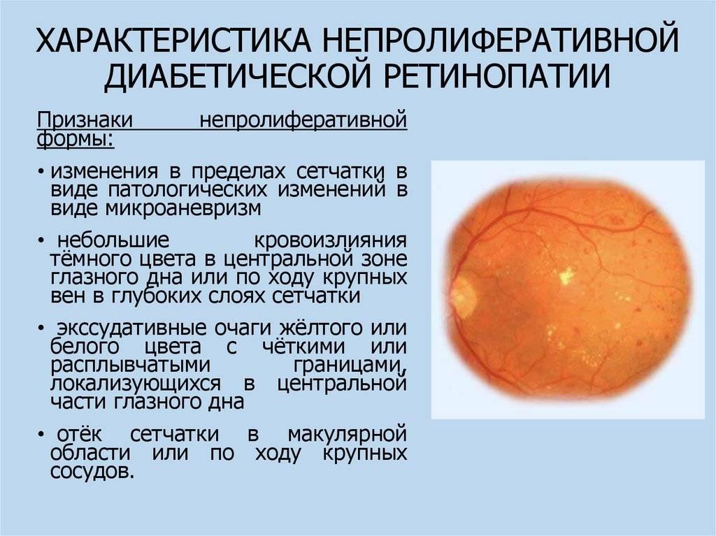 Что это такое ретинопатия глаза: виды, симптомы и лечение