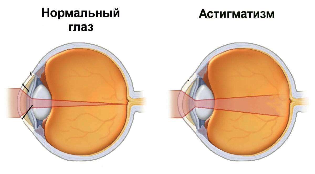 Как восстановить зрение при астигматизме без операции
