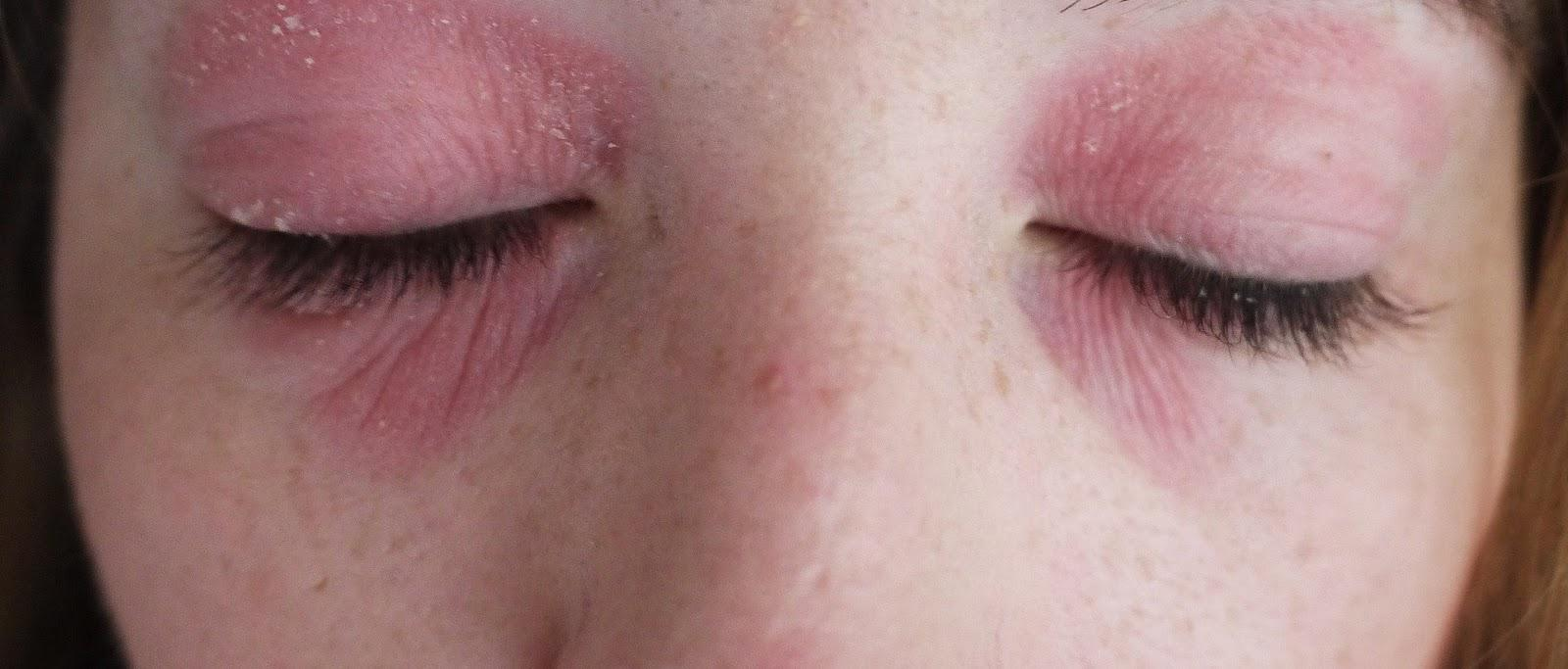 Аллергия на глазах: причины, симптомы и лечение
