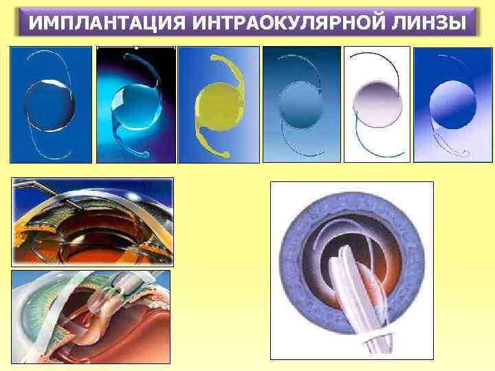 Имплантация интраокулярных линз (иол) в москве: стоимость процедуры, показания и противопоказания