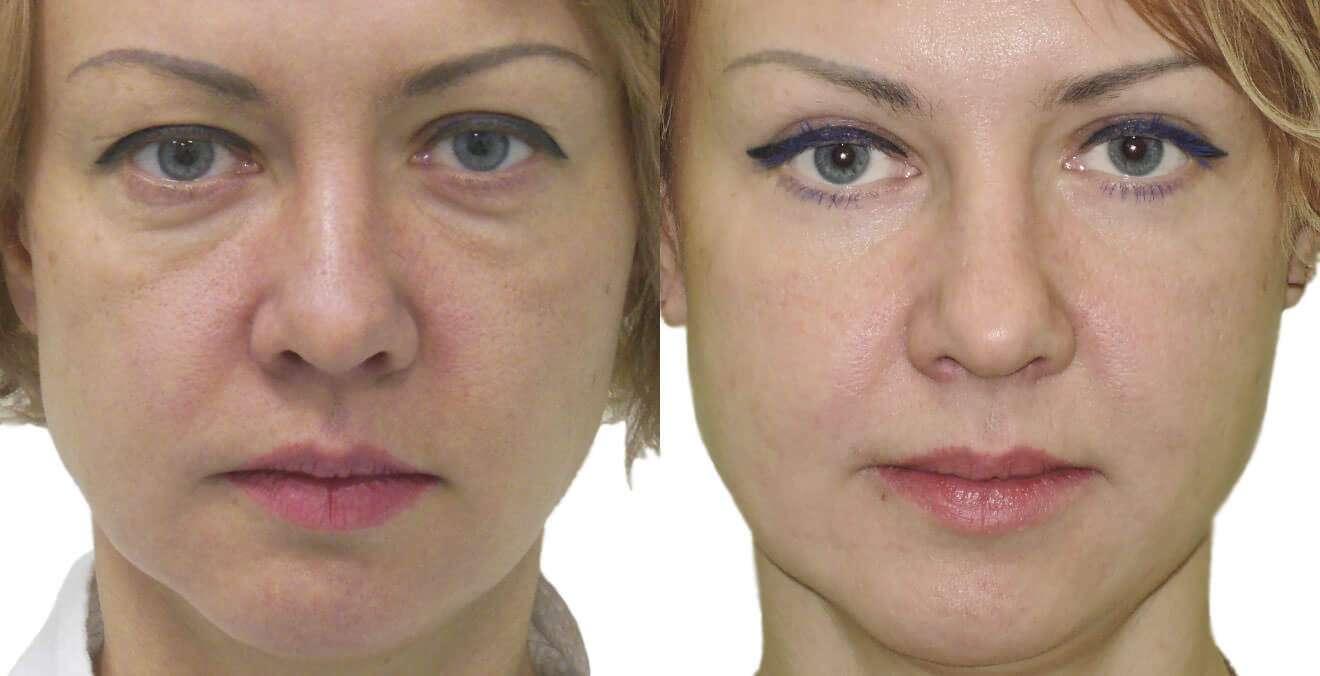 Как делать макияж для впалых глаз?