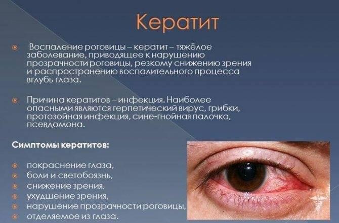 Подробно о видах, симптомах и лечении кератита