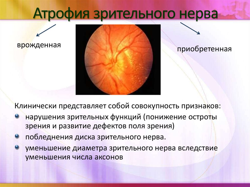 Неврит зрительного нерва: симптомы, лечение и прогноз заболевания