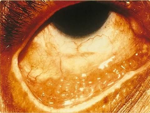 Хламидийный конъюнктивит (хламидиоз глаз): симптомы, лечение и прочие аспекты