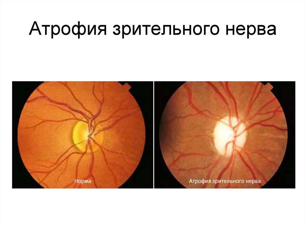 Причины и лечение атрофии зрительного нерва