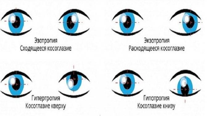 Косоглазие (страбизм): причины, симптомы, диагностика, виды, лечение у взрослых, что это такое