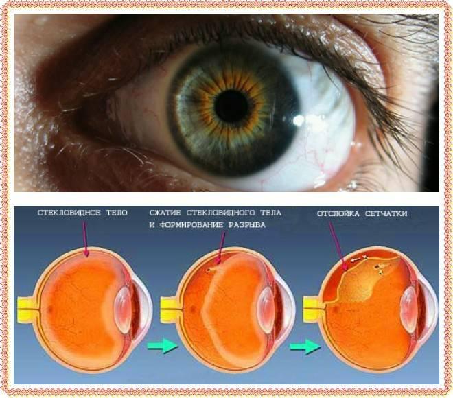 Осложнения после операции по удалению катаракты