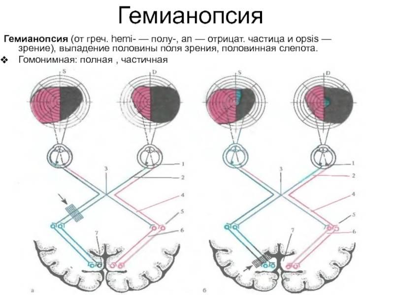 Изменение полей зрения: как лечить? сайт «московская офтальмология»