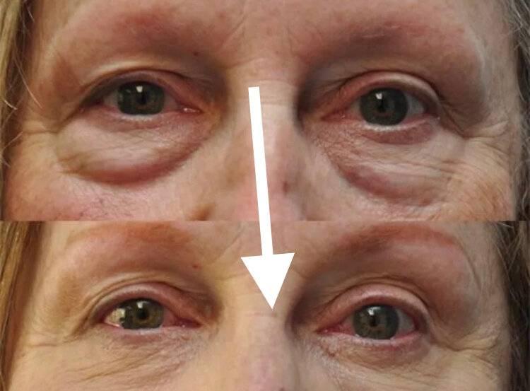 Массаж от мешков под глазами (лимфодренажный, вакуумный, тибетский и другие)