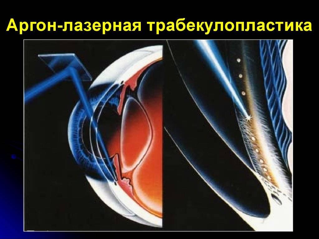 Глаукома - операции