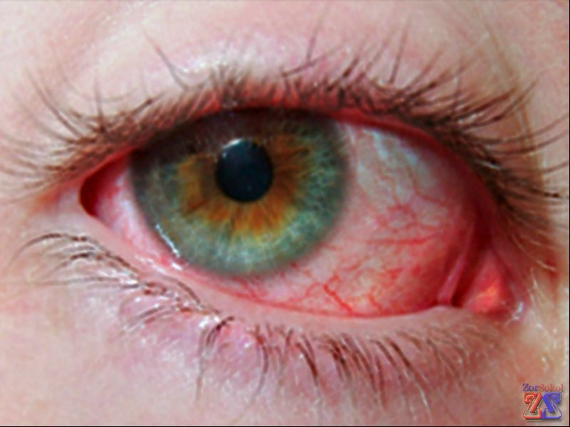 Красные глаза от компьютера что делать