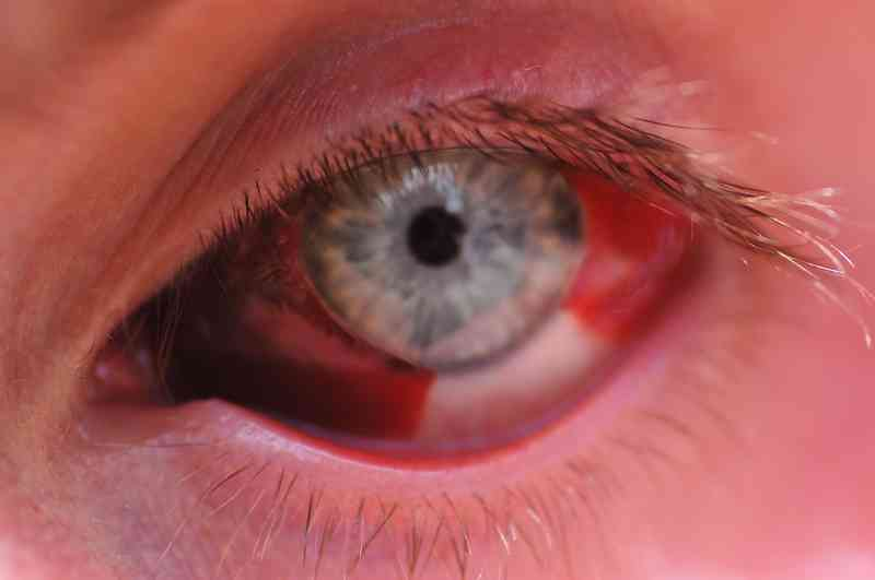 Что делать, если краснеют глаза от компьютера