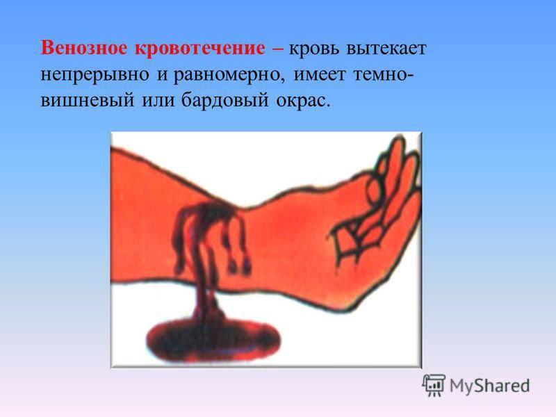Вытек глаз причины потёкшего зрачка - мед портал tvoiamedkarta.ru