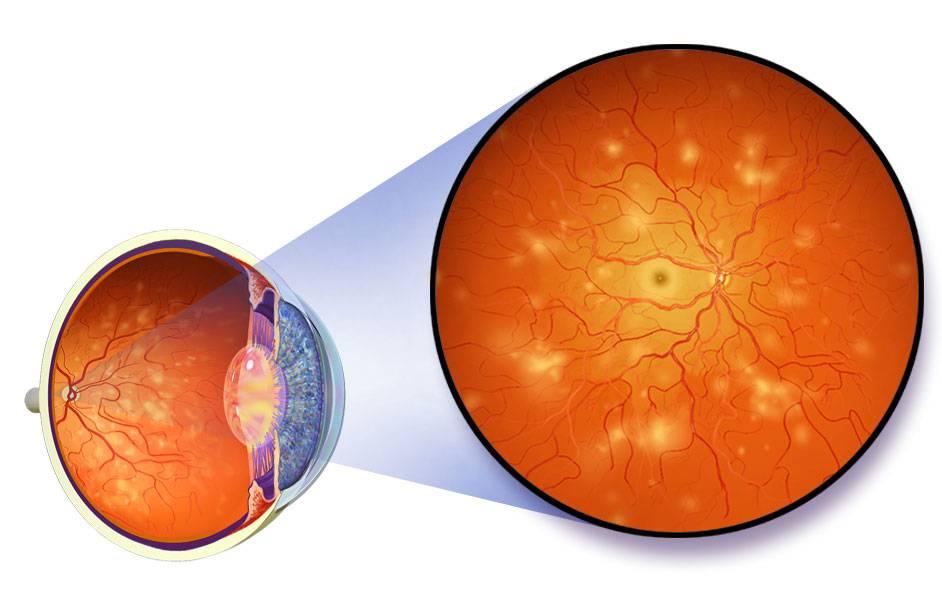 """Ретинопатия: понятие, формы, типы, диагностика, лечение - """"здоровое око"""""""