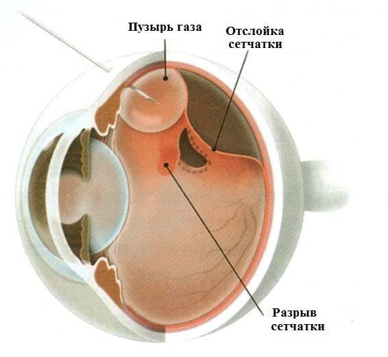 Из-за чего происходит разрыв сетчатки глаза? последствия, симптомы и лечение заболевания