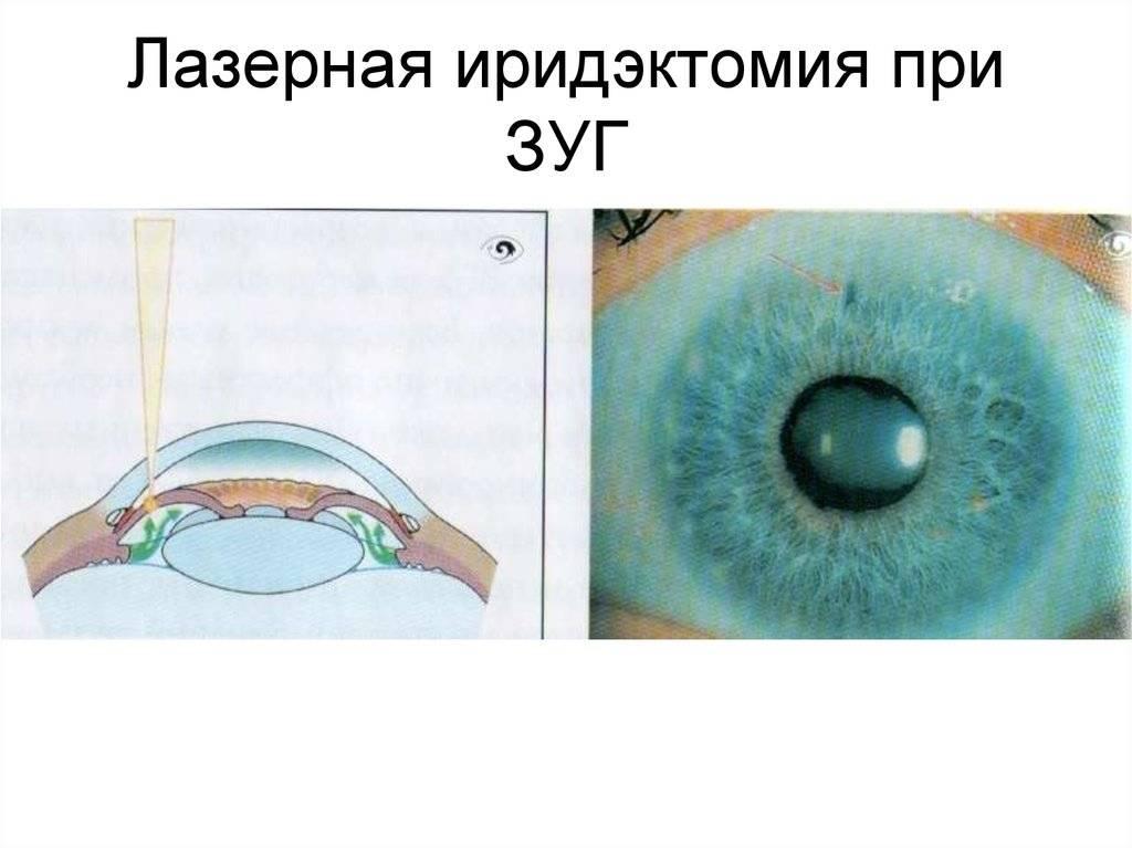 Лазерная иридотомия при глаукоме – особенности проведения операции