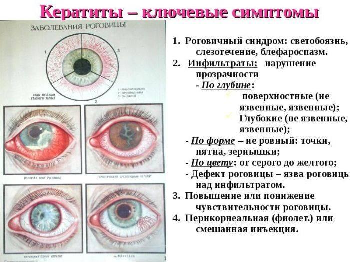 Заболевания роговицы. диагностика и лечение