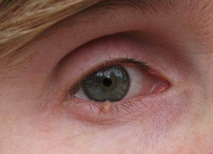 Киста на веке глаза