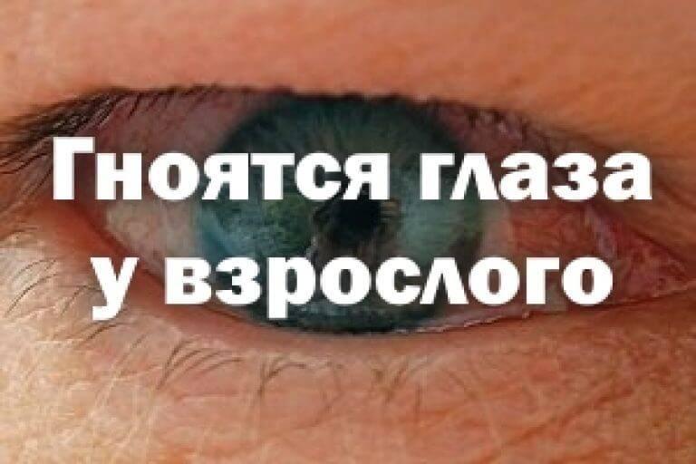 Болит глаз и выделяется гной | ocularhelp