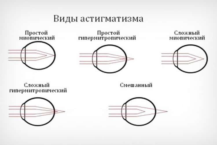 Гиперметропический астигматизм: что это такое, симптомы, лечение