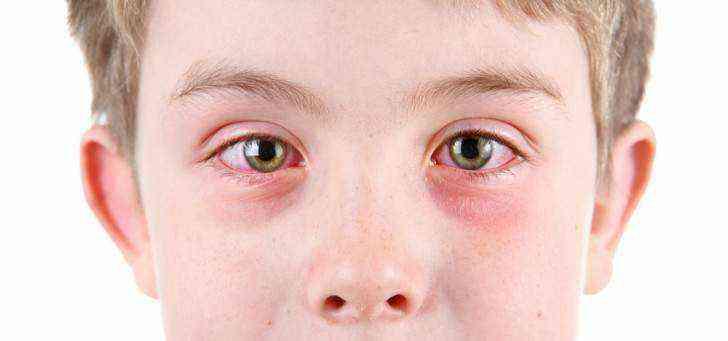 Нервный тик глаза